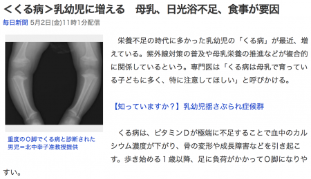 くる病ニュース のコピー