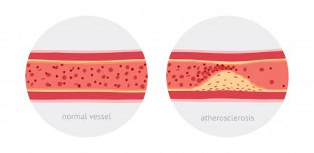 動脈硬化2
