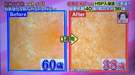 HSP肌年齢